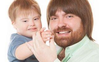 Лечение сопутствующих синдрому Дауна заболеваний