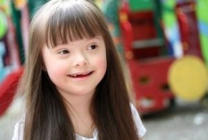 Ребенок с синдромом Дауна
