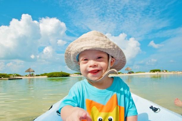 Развитие детей с синдромом дауна
